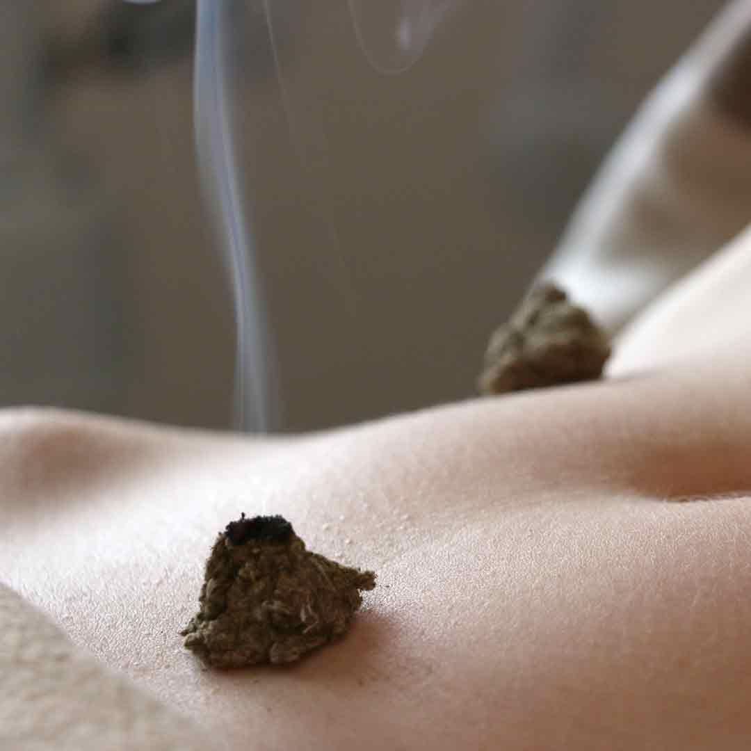moxibustion toulouse