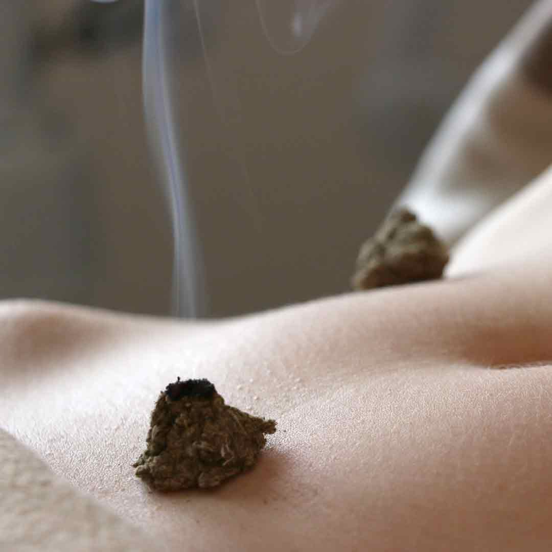 moxibustion médecine chinoise toulouse